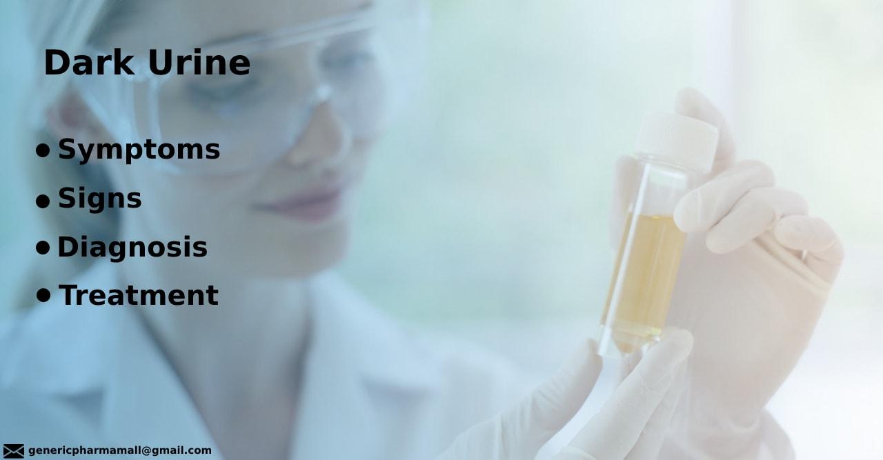 Dark Urine: Symptoms | Signs | Diagnosis | Treatment
